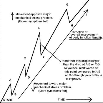 unwinding chart