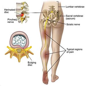 sciatica leg pain